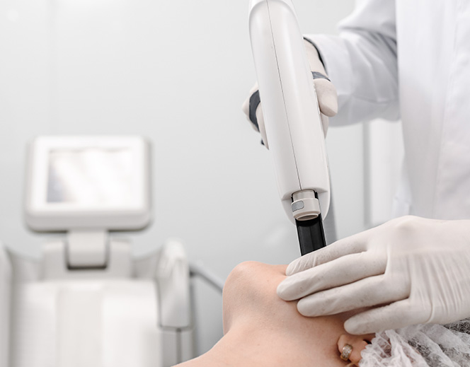 Zabieg laserowego odmładzania skóry