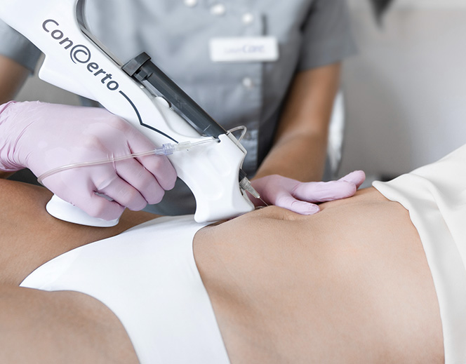 Zabieg karboksyterapii