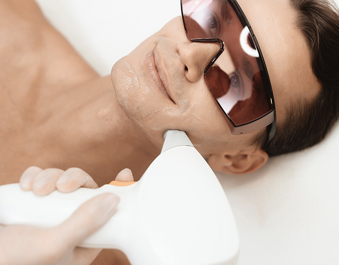 Depilacja laserowa u mężczyzny